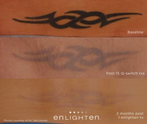 Raleigh Tattoo Removal, Fat Reduction, and Laser Skin Treatments ...