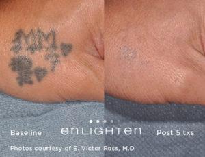 Laser Tattoo Removal - Fayetteville Skin & Body Aesthetics